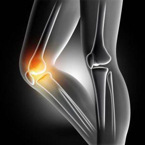 دانلود ترجمه مقاله تاثیر احساس درد بر نتایج اولیه جراحی زانو در ورزشکاران – الزویر ۲۰۲۰